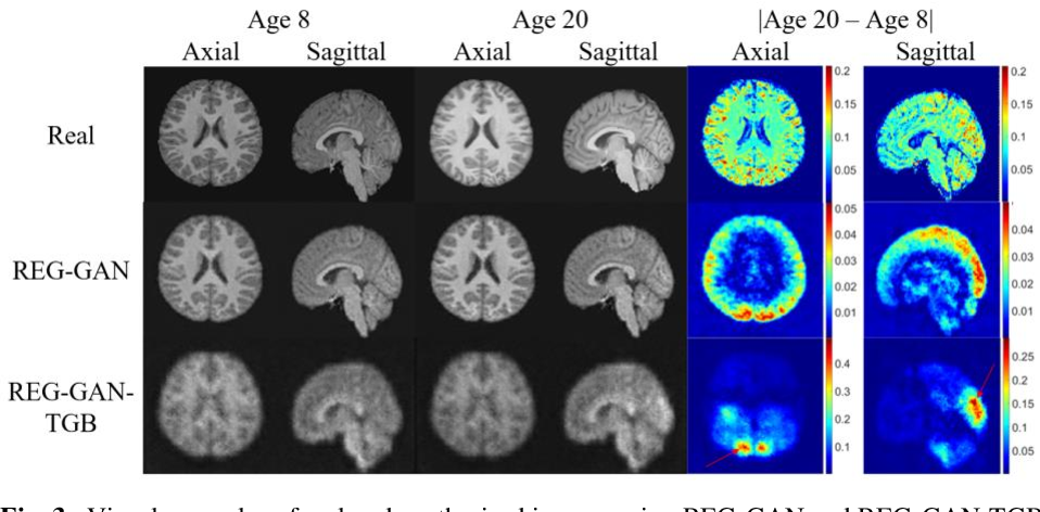 Figure 4 for Image Augmentation Using a Task Guided Generative Adversarial Network for Age Estimation on Brain MRI