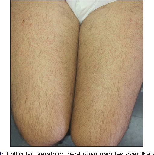 PDF] Nilotinib-induced Keratosis Pilaris Associated with Alopecia