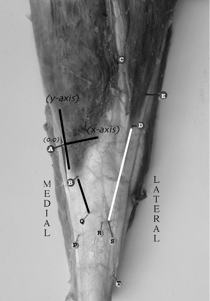 FIGURE 2 Cadaveric specimen demonstrating the landmarks used to identify the distal extent of gastrocnemius muscle (points A, B, C, D, E) and its insertion (points P, Q, R, S, T). The Cartesinan coordinate system was centered at point A (0, 0). The lengths of the medial and lateral aspects of the gastrocnemius aponeurosis, lines BQ (black line connecting points B and Q), and DS (white line connecting point D and S), respectively, were calculated with the Pythagorean theorem.