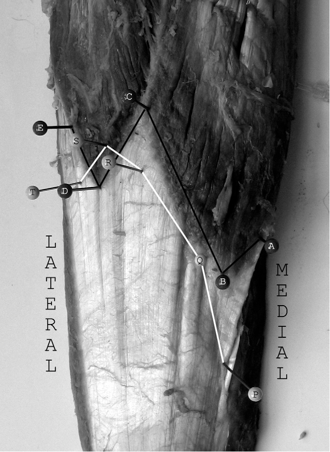 FIGURE 6 Cadaveric specimen demonstrating a direct attachment of both heads of the gastrocnemius muscle onto the soleus aponeurosis. Black line delineates distal extent of muscular tissue (points A, B, C, D, E). White line delineates gastrocnemius insertion (points P, Q, R, S, T) onto the underlying soleus aponeurosis.