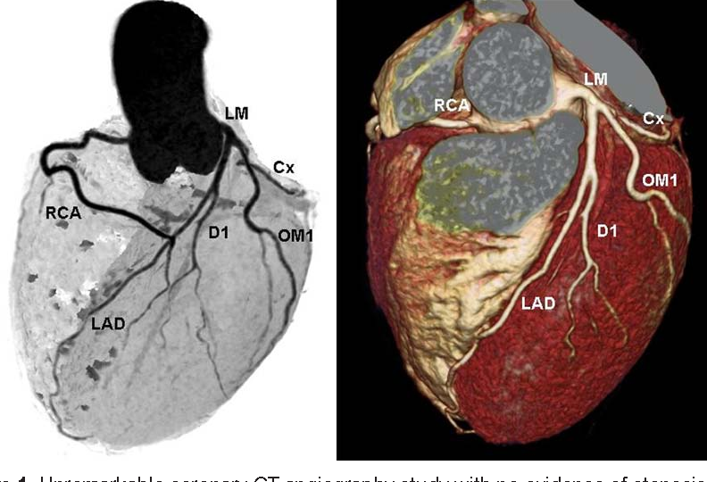 Figure 1 From Coronary Artery Computed Tomography Scanning