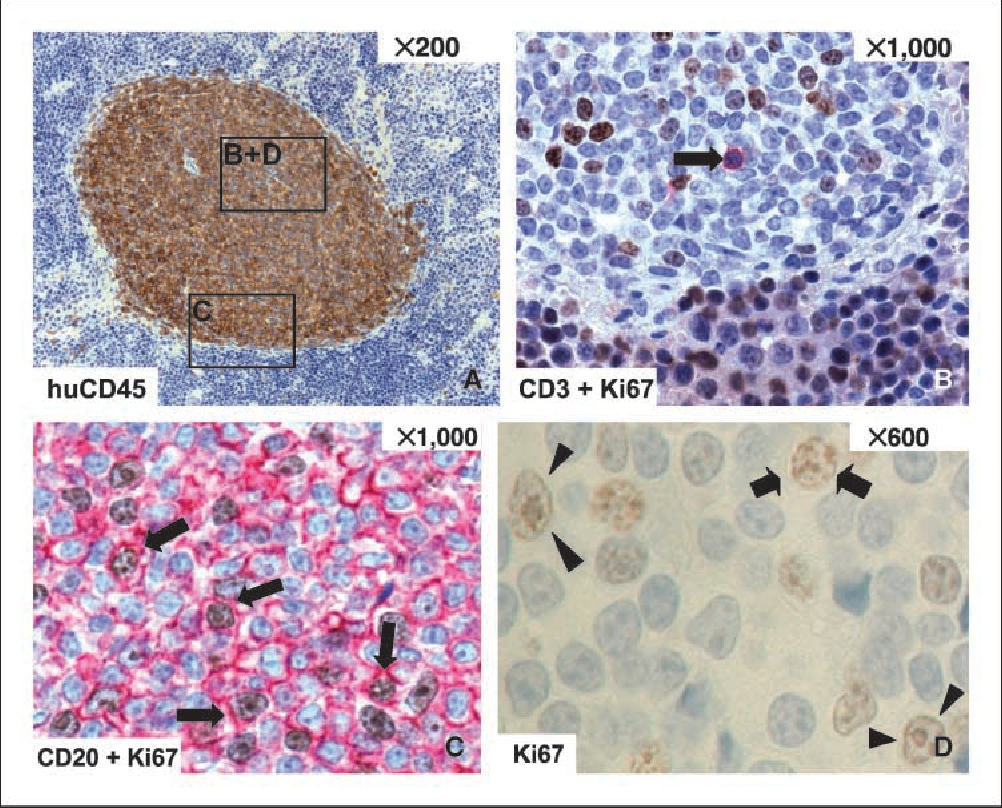 """Figure 3. Immunohistologic characterization of CLL cells localized in focal aggregates in the spleens of NOD/ SCID mice. Serial immunohistologically stained sections of a murine spleen showing focal engraftment of CD45+ human lymphoid cells were investigated. A, a representative focal aggregate composed of human CD45+ cells. B and C, double immunostaining of Ki67 (brown ) and CD3 (red ; B) or CD20 (red ; C ) identifies a single CD3+ but Ki67 cell (B , !) but multiple CD20+ cells coexpressing Ki67 (C , !) within the splenic focal aggregate. About 10% of the aggregate composing cells show Ki67 positivity (C and D). Ki67 staining seems to be restricted to cells with activated either prolymphocytic (! p) and/or paraimmunoblast ("""" 3) phenotype (D )."""