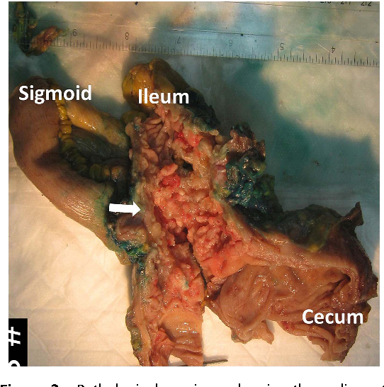 figure 3 from malignant caeco sigmoid fistula semantic scholar
