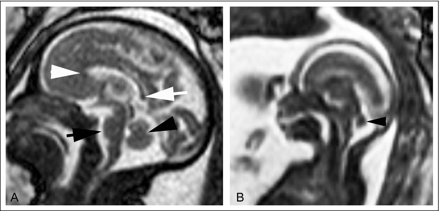Figure 6 from Fetal magnetic resonance imaging (MRI): a tool for a ...
