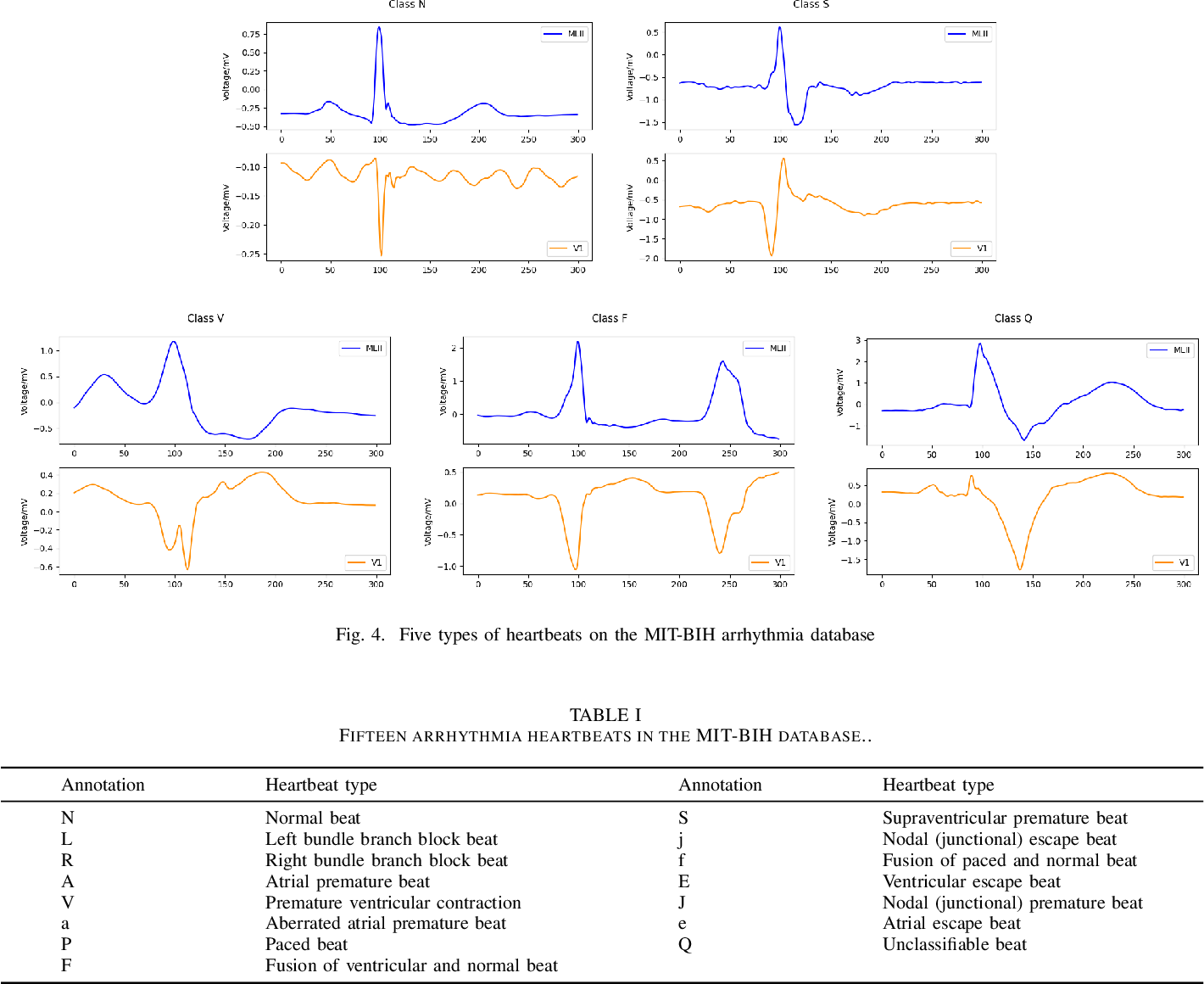 Figure 4 for Heart-Darts: Classification of Heartbeats Using Differentiable Architecture Search