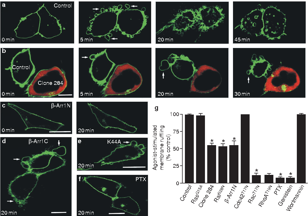 Figure 2 Characterization of fMLP-receptor-induced membrane ruffling. a, Representative micrographs showing the time course of GFP-tagged fMLP receptor reorganization in HEK 293 cells incubated in the presence or absence of 100