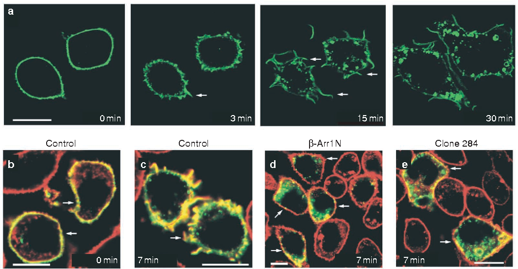 Figure 3 fMLP-receptor-stimulated membrane ruffling in RBL-2H3 cells. Representative micrographs showing the time course of GFP-tagged fMLP receptor re-organization in RBL-2H3 cells before (0 min) and after 100 nM fMLP stimulation