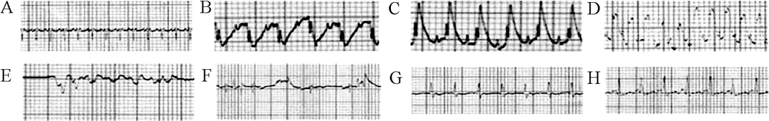 Fig. 2 Electrocardiograms of animals before and after operation A and B: Electrocardiograms of MI group rats before and immediately after operation respectively; C: Electrocardiograms of MI rats 1 h after operation; D, E, F: Several kinds of arrhythmia recorded after operation of MI rats respectively; G and H: The records of sham operation group rats before and after procedure