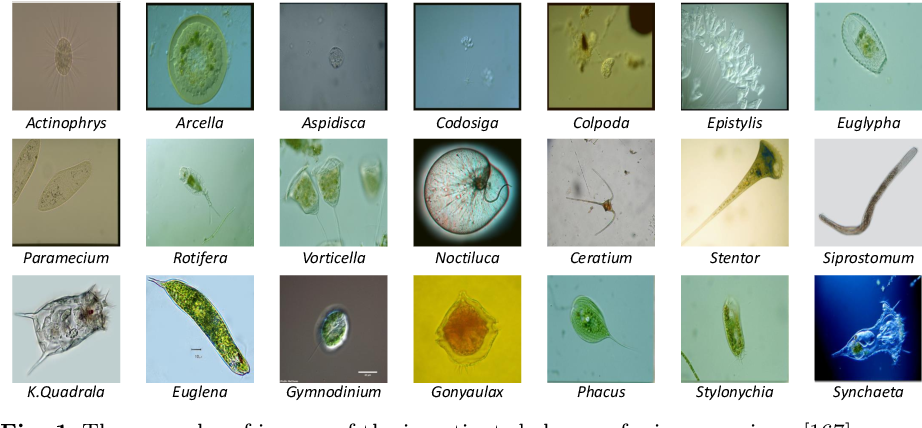 Figure 1 for Applications of Artificial Neural Networks in Microorganism Image Analysis: A Comprehensive Review from Conventional Multilayer Perceptron to Popular Convolutional Neural Network and Potential Visual Transformer