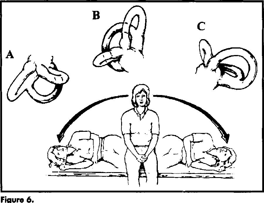 VESTIBULAR HABITUATION EXERCISES PDF