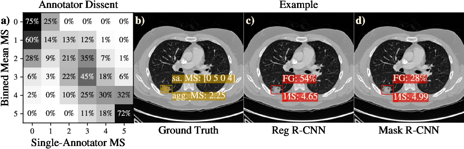 Figure 3 for Reg R-CNN: Lesion Detection and Grading under Noisy Labels