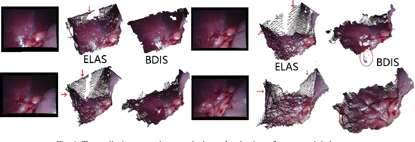 Figure 3 for Bayesian dense inverse searching algorithm for real-time stereo matching in minimally invasive surgery