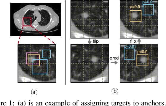 Figure 1 for FocalMix: Semi-Supervised Learning for 3D Medical Image Detection