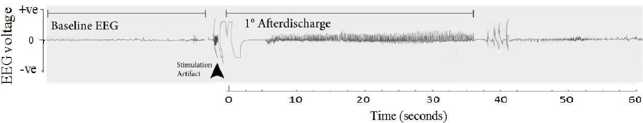 Figure 1-1: Seizure afterdischarge