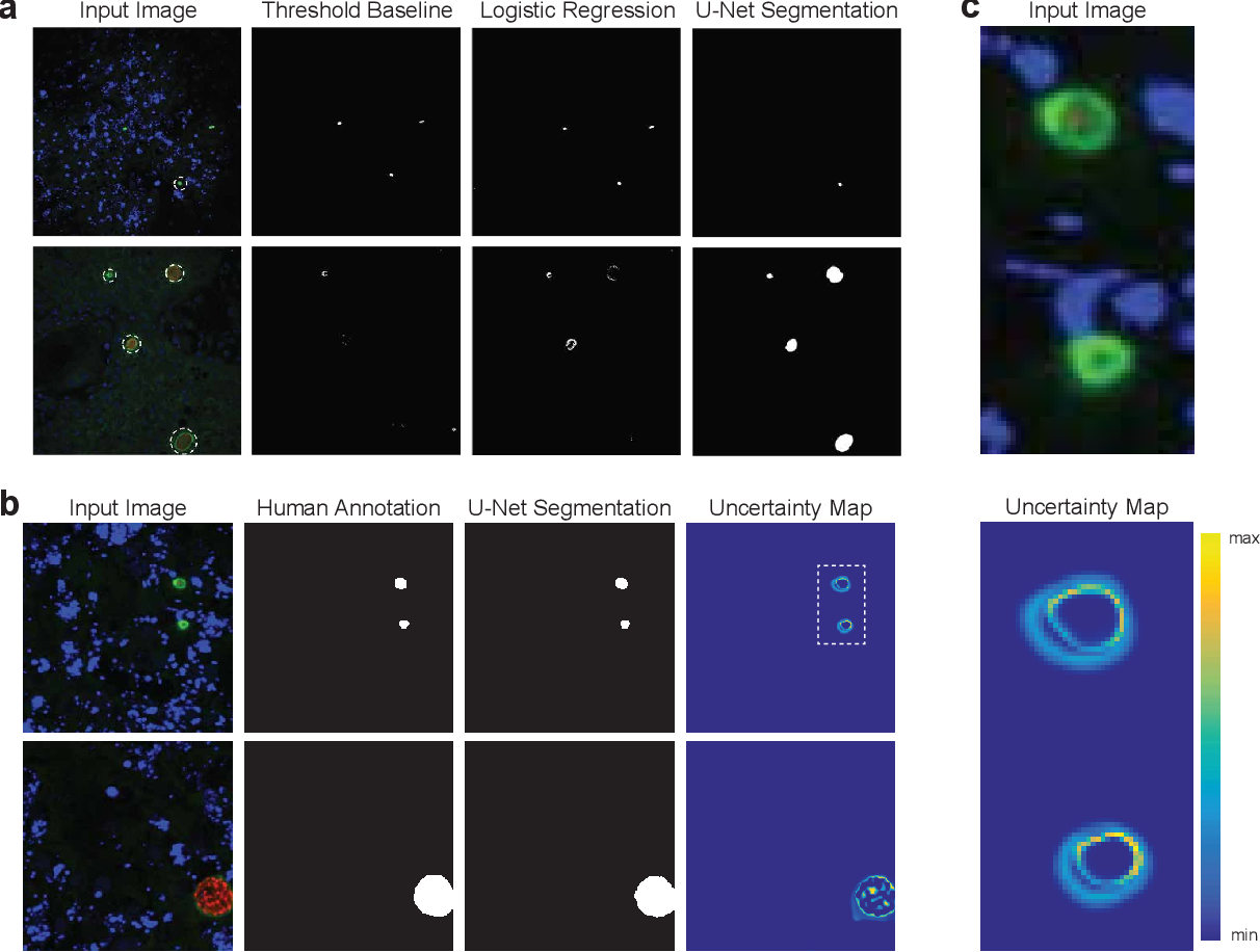 Figure 3 for Image segmentation of liver stage malaria infection with spatial uncertainty sampling
