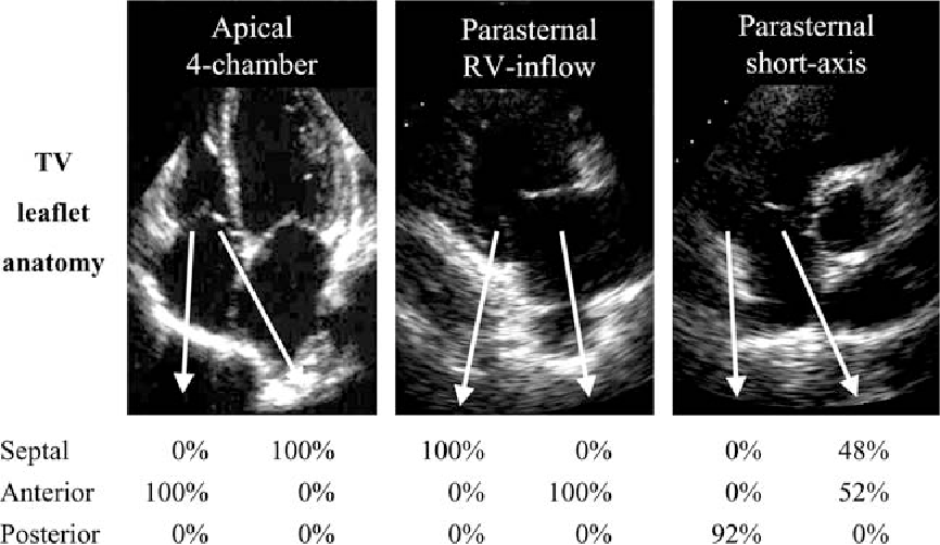 Assessment Of Normal Tricuspid Valve Anatomy In Adults By Real Time