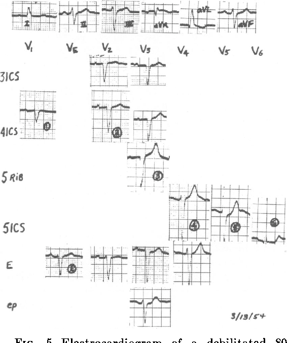 Figure 5 From Qs And Qr Pattern In Leads V3 And V4 In Absence Of