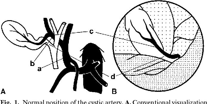 Laparoscopic Visualization of the Cystic Artery Anatomy - Semantic ...