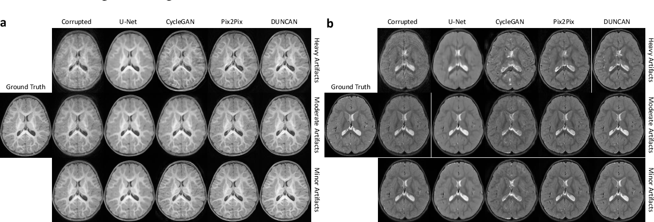 Figure 3 for Learning MRI Artifact Removal With Unpaired Data