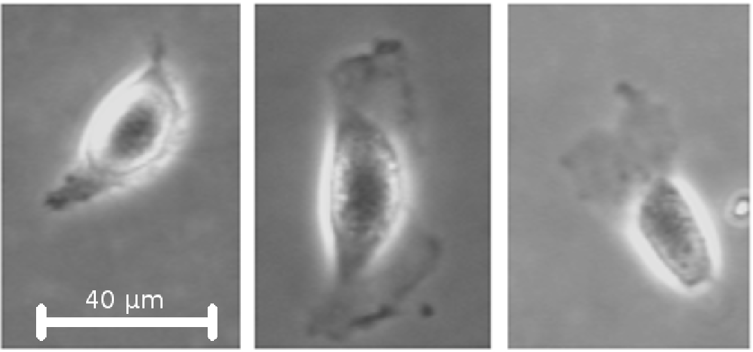 Figure 1 for A Framework for Automated Cell Tracking in Phase Contrast Microscopic Videos based on Normal Velocities