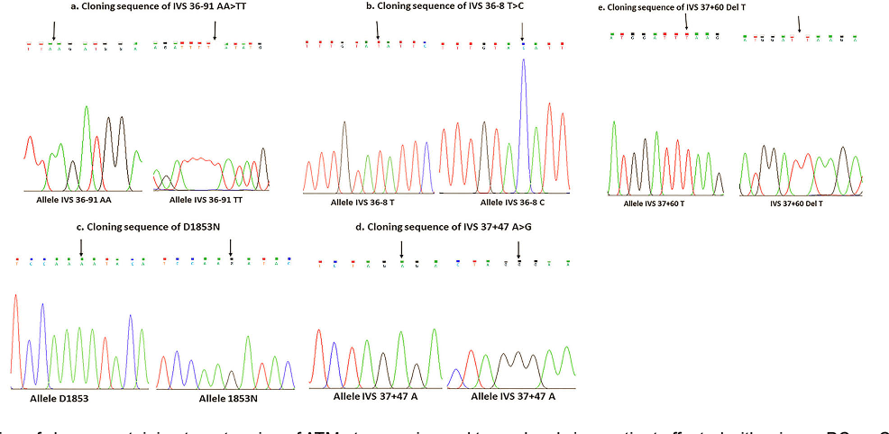 Five Hit Hypothesis In ATM Gene An Individualized Model A