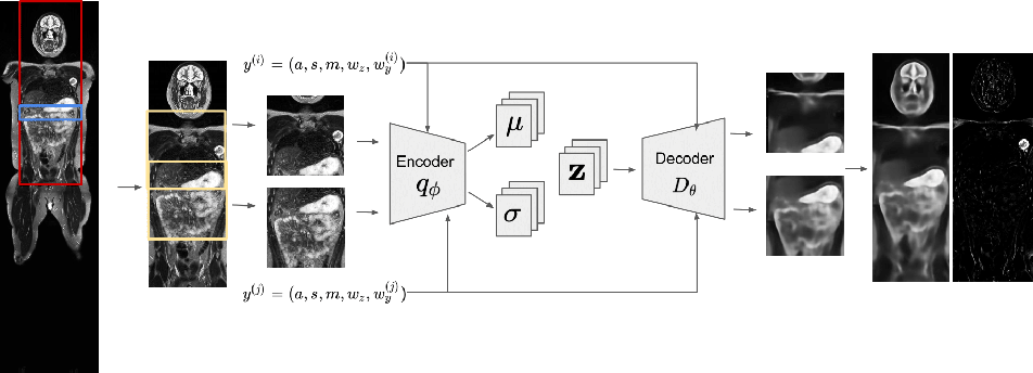 Figure 1 for 3D Reasoning for Unsupervised Anomaly Detection in Pediatric WbMRI