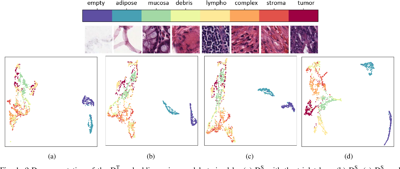 Figure 1 for Supervision and Source Domain Impact on Representation Learning: A Histopathology Case Study