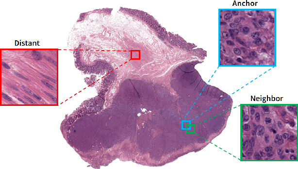 Figure 2 for Supervision and Source Domain Impact on Representation Learning: A Histopathology Case Study