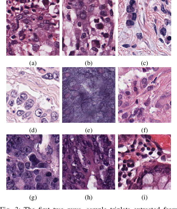 Figure 3 for Supervision and Source Domain Impact on Representation Learning: A Histopathology Case Study