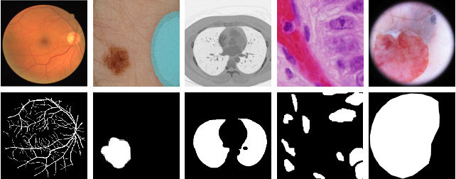 Figure 1 for Multi-level Context Gating of Embedded Collective Knowledge for Medical Image Segmentation