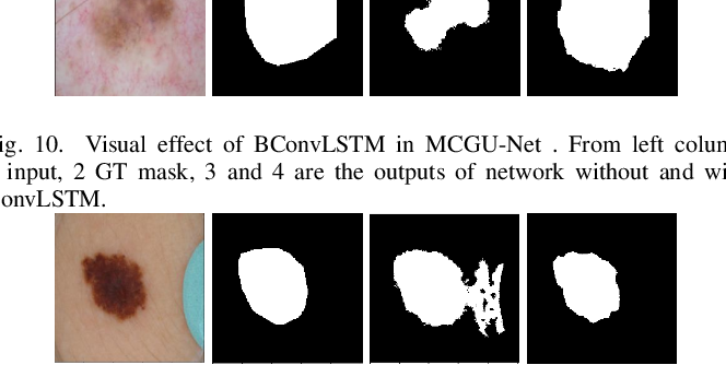 Figure 2 for Multi-level Context Gating of Embedded Collective Knowledge for Medical Image Segmentation