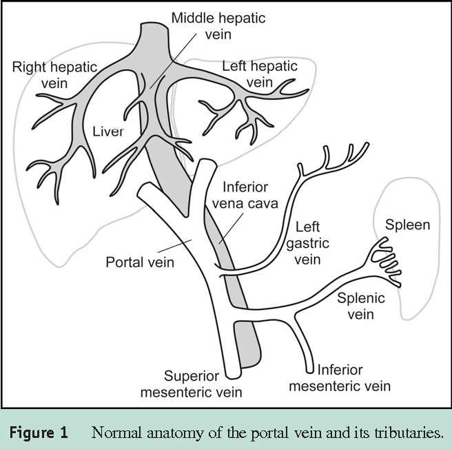 Figure 1 From Portal Vein Thrombosis Semantic Scholar