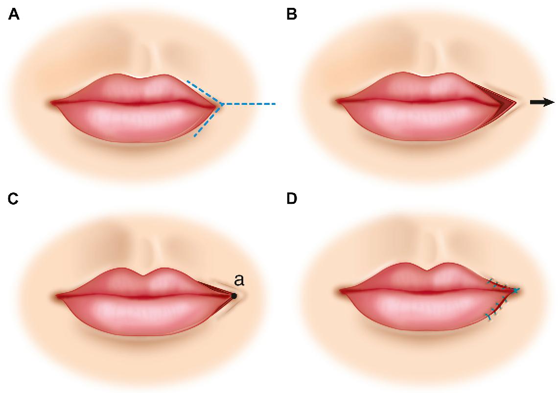 Figure 14 from Flap Basics II: Advancement Flaps. - Semantic Scholar