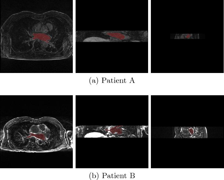 Figure 3 for Multi-Task Learning for Left Atrial Segmentation on GE-MRI