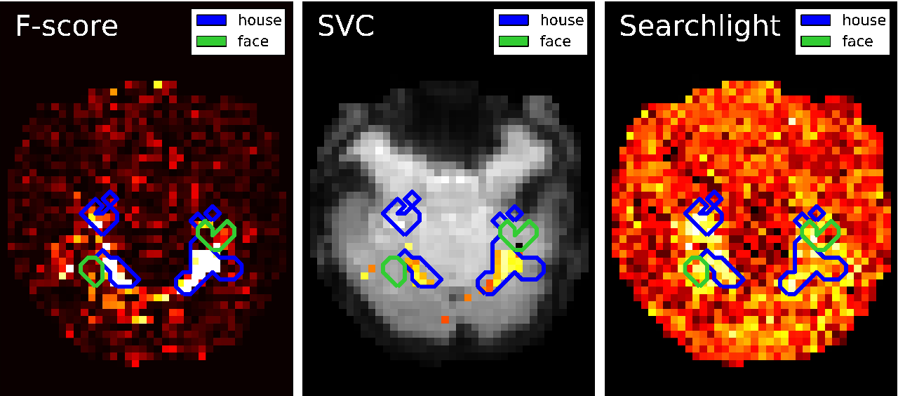 Figure 3 for Machine Learning for Neuroimaging with Scikit-Learn