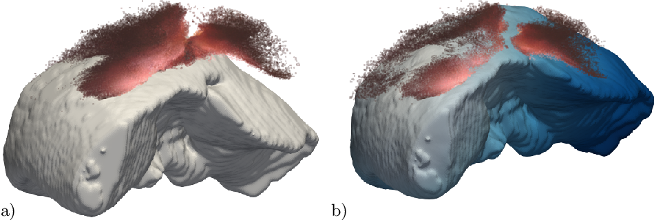 Figure 1 for Non-Rigid Volume to Surface Registration using a Data-Driven Biomechanical Model