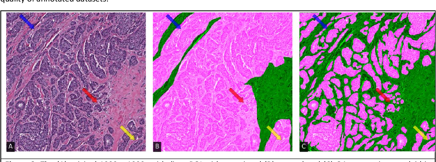 Figure 3 for Quick Annotator: an open-source digital pathology based rapid image annotation tool
