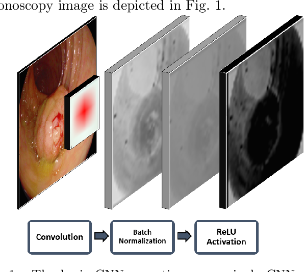 Figure 1 for Towards a Computed-Aided Diagnosis System in Colonoscopy: Automatic Polyp Segmentation Using Convolution Neural Networks