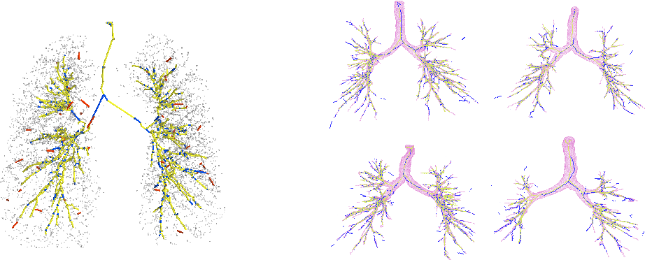 Figure 3 for Mean Field Network based Graph Refinement with application to Airway Tree Extraction