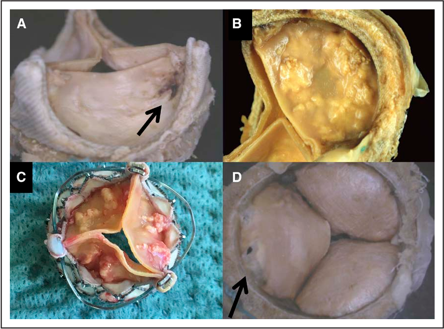 Figure 1. Examples of degenerated bioprostheses. A, Carpentier-Edwards Perimount valve: leaflet tear. B, Carpentier-Edwards Magna Ease valve: leaflet calcification. C, Engager THV (Medtronic): leaflet restriction and calcification. D, Carpentier-Edwards Perimount valve: leaflet tear (ventricular side).