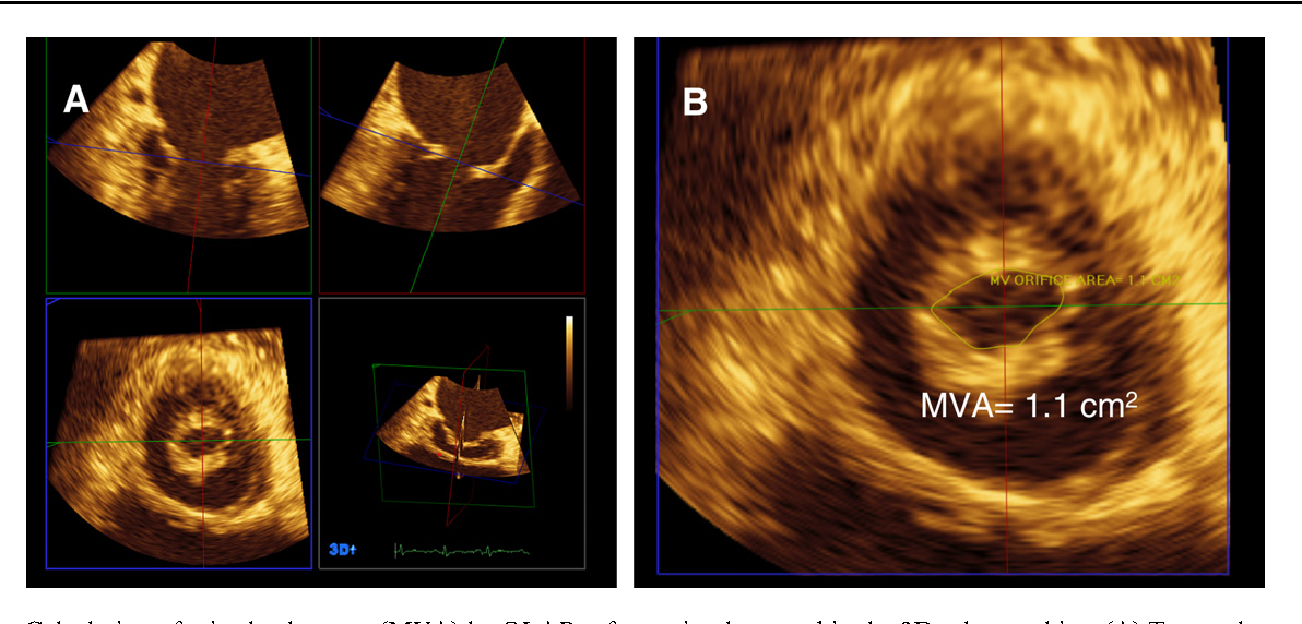 Figure 10 from Echocardiography in mitral stenosis  - Semantic Scholar
