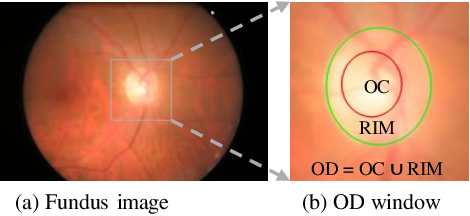 Figure 1 for A Deep Gradient Boosting Network for Optic Disc and Cup Segmentation