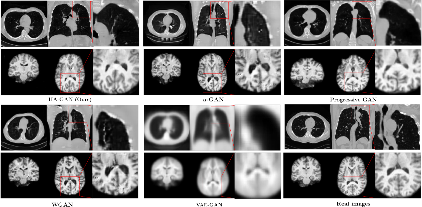 Figure 3 for Hierarchical Amortized Training for Memory-efficient High Resolution 3D GAN