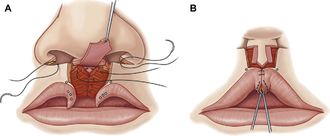 Figure 3 From Modern Tenets For Repair Of Bilateral Cleft Lip