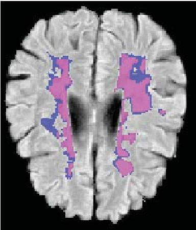 Figure 3 for Soft labeling by Distilling Anatomical knowledge for Improved MS Lesion Segmentation