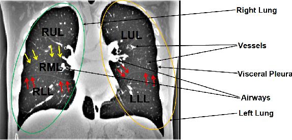 Figure 1 for Automatic Segmentation of Pulmonary Lobes Using a Progressive Dense V-Network