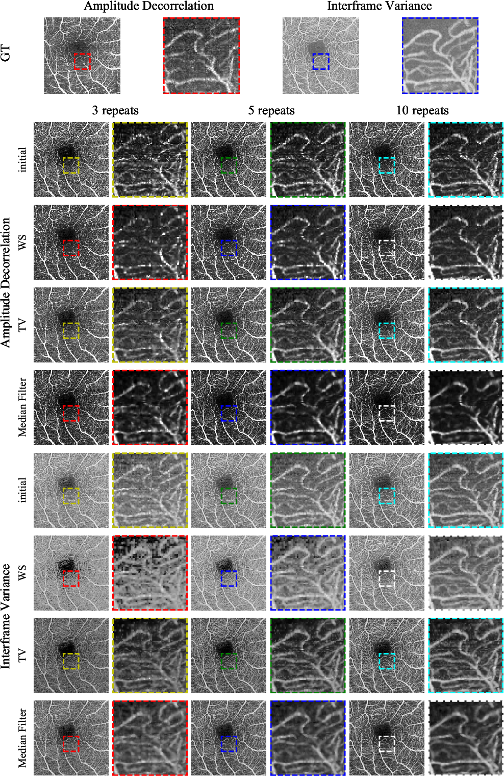 Figure 4 for Maximum a posteriori signal recovery for optical coherence tomography angiography image generation and denoising