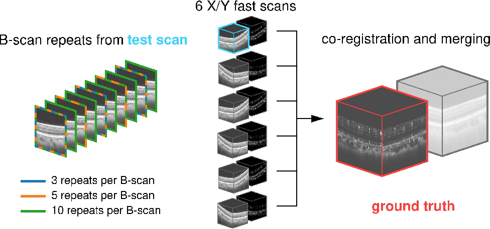 Figure 1 for Maximum a posteriori signal recovery for optical coherence tomography angiography image generation and denoising