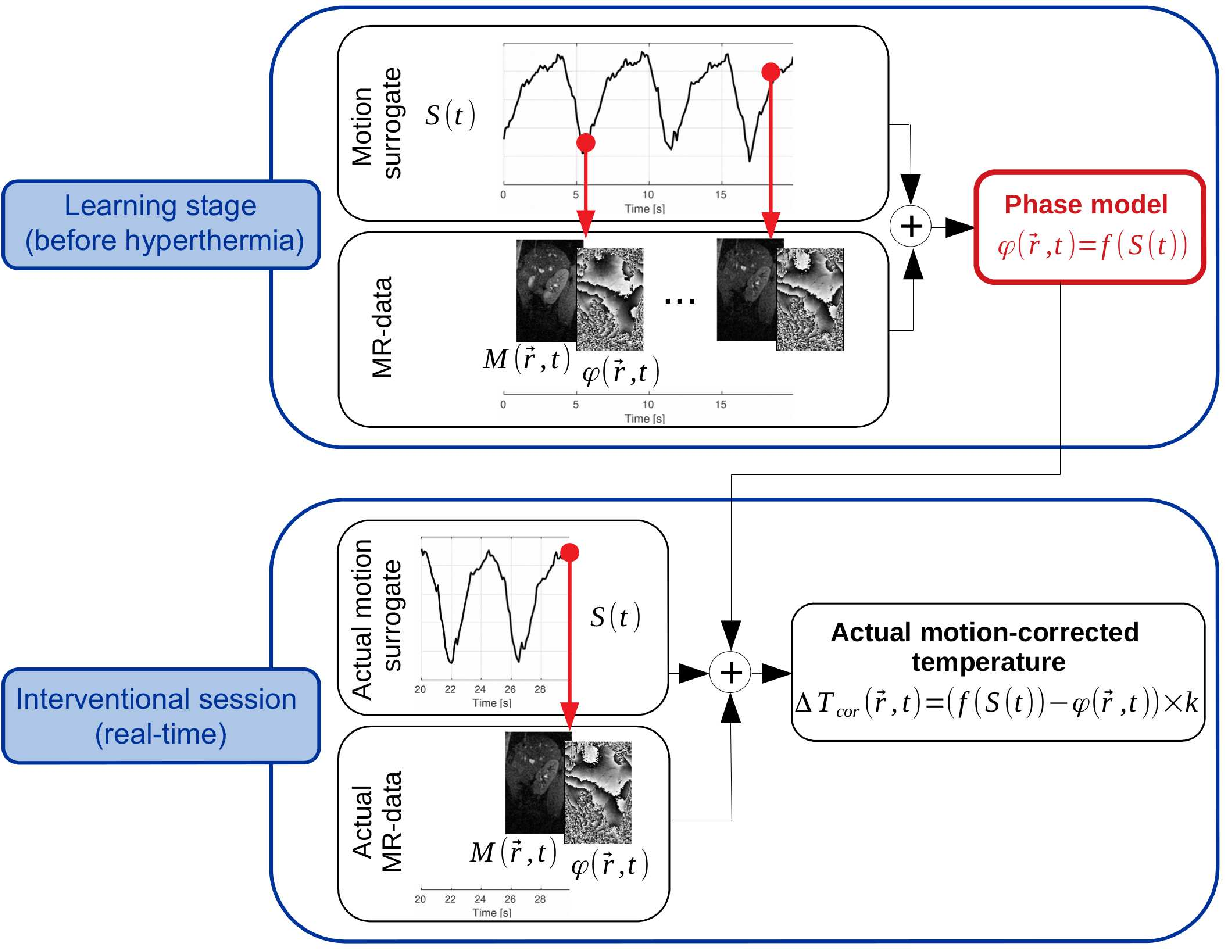 Figure 1 for Deep correction of breathing-related artifacts in MR-thermometry