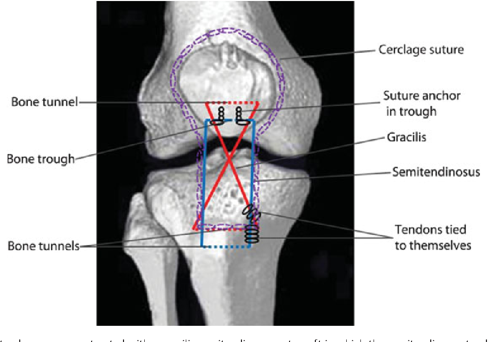 Figure 1 from Patellar tendon reconstruction with semitendinosus ...